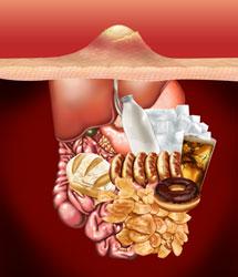 Tratamientos anti-acné