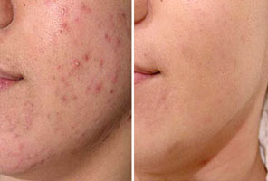 How to Get Rid of Acne FOREVER
