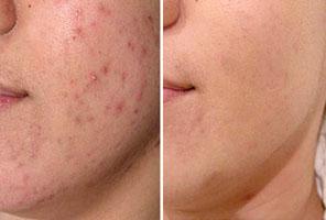 Elimina el acné para siempre