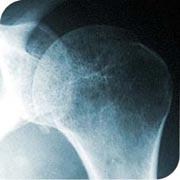 Beber mucho café puede provocar osteoporosis